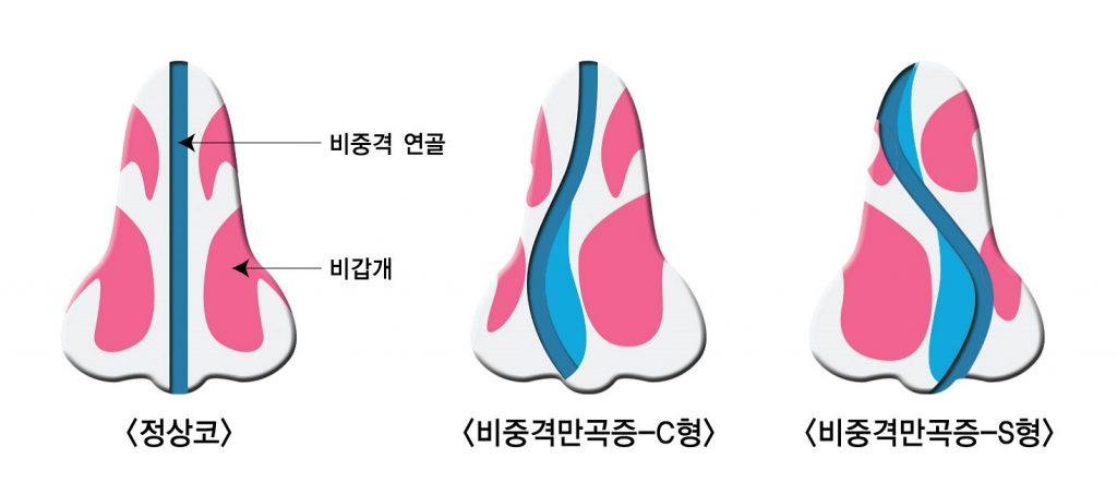 휘어진 비중격연골